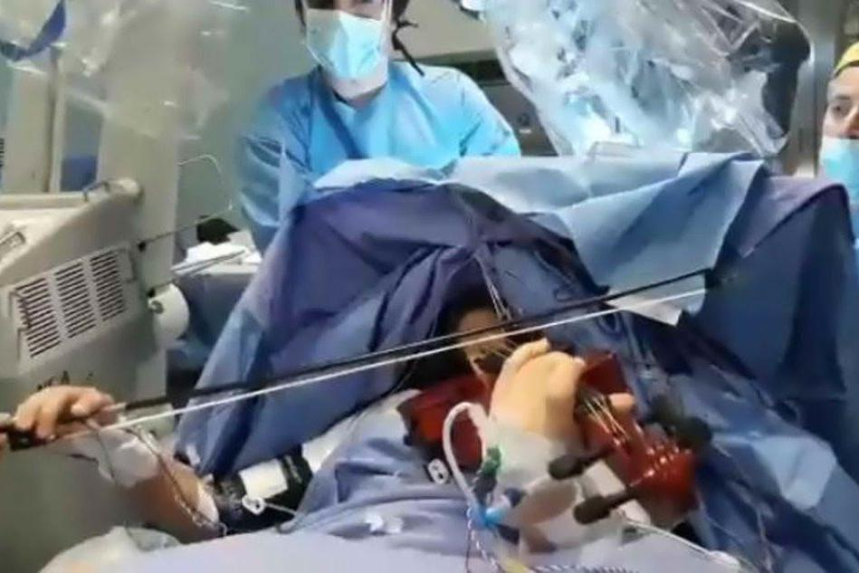 Operata di tumore al cervello mentre suona il violino: l'incredibile intervento
