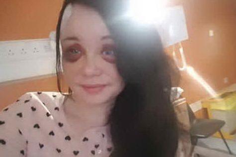 """Il fidanzato la picchia, lei si sfoga su Facebook: """"Mi ha perforato il cervello"""""""
