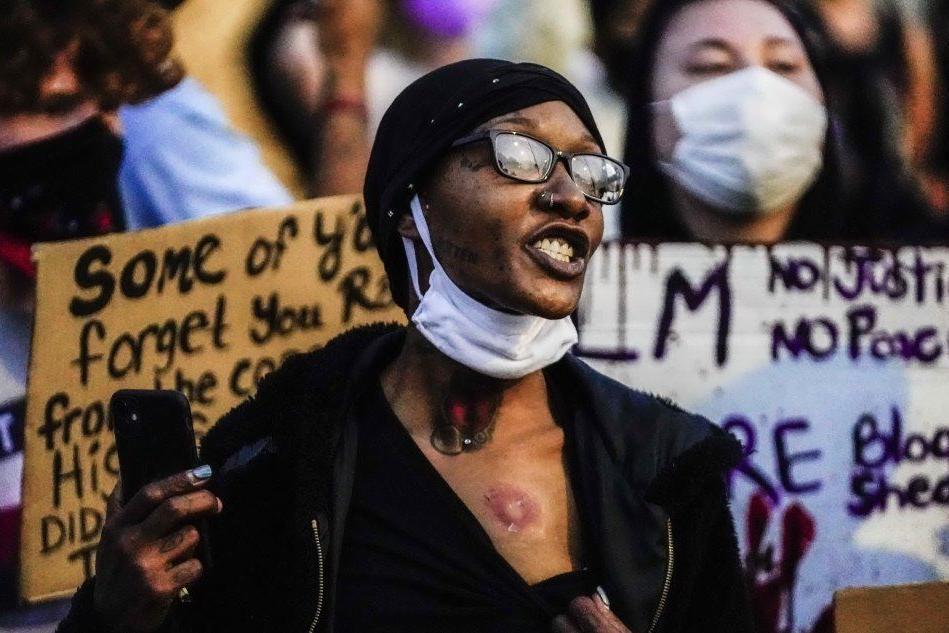 Proteste in Wisconsin per un afroamericano ferito dalla polizia