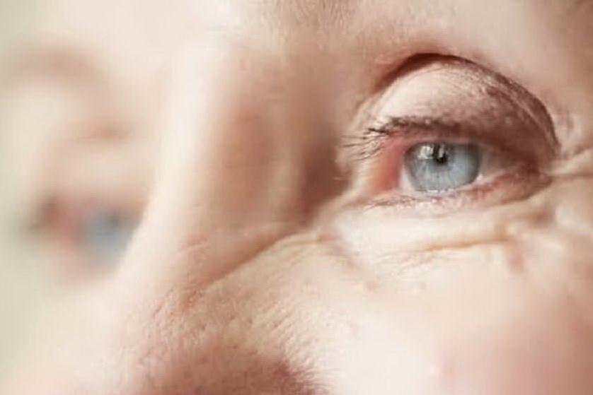 Tremolio all'occhio causato da ansia e stress, ma dietro può esserci altro