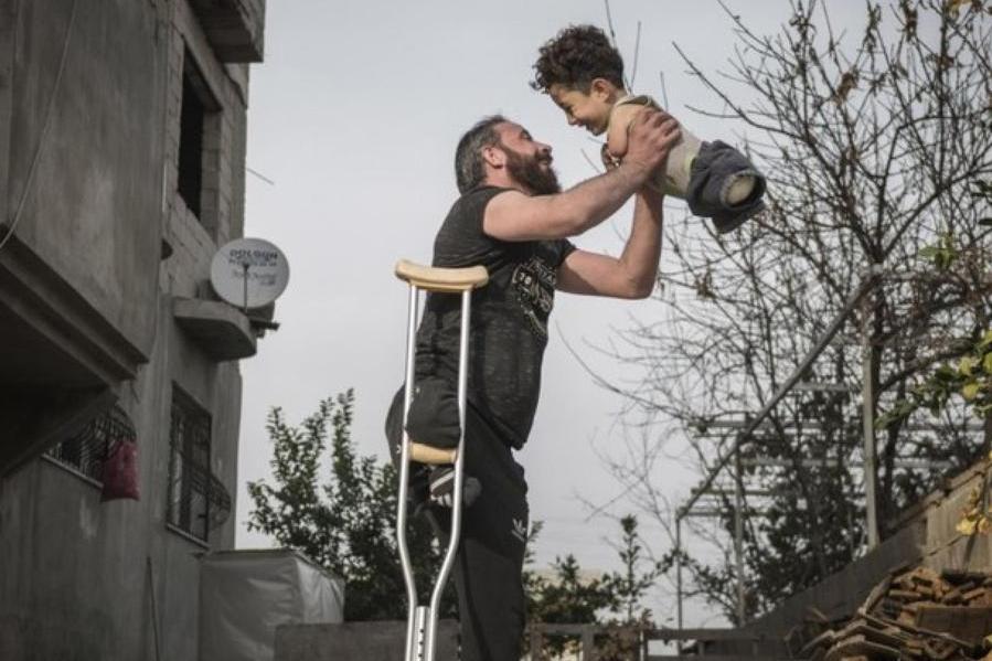 L'abbraccio tra il papà e il bimbo senza arti: il dramma siriano in uno scatto