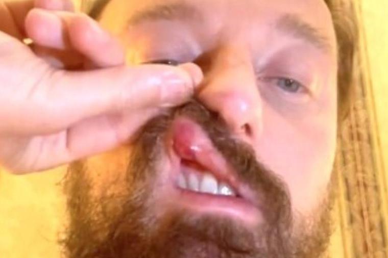 """Dj Francesco e il pugno di McGregor: """"Ho un trauma cranico, non ritiro la denuncia neanche in cambio di 10 milioni"""""""