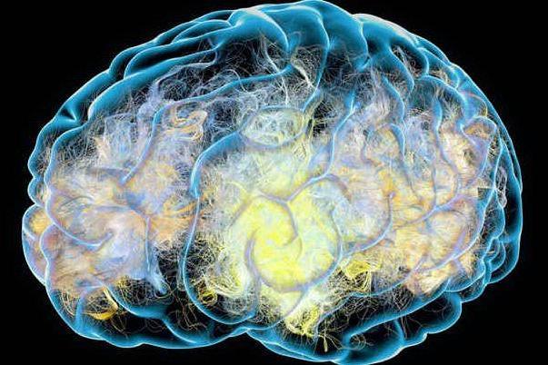 Alzheimer, il 2020 potrebbe essere l'anno della svolta verso il vaccino