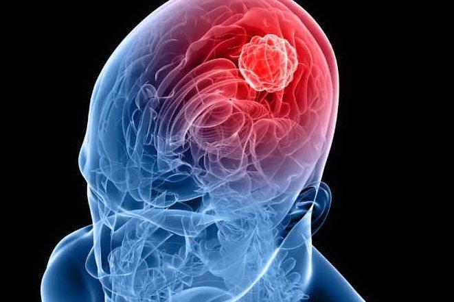 """Una rete per """"catturare"""" il tumore del cervello: efficace contro il glioblastoma multiforme"""