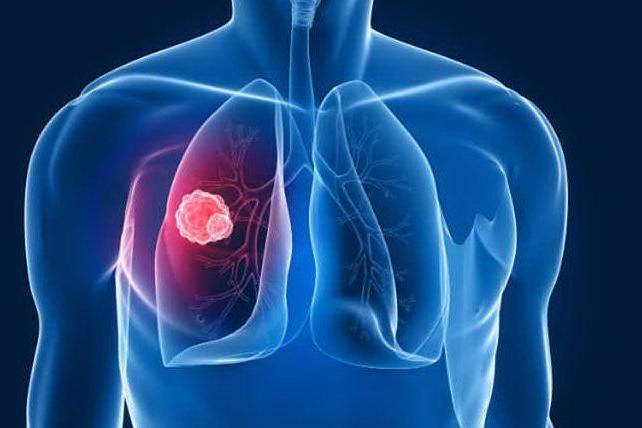 Cancro al polmone metastatico, il nuovo farmaco che riduce le dimensioni