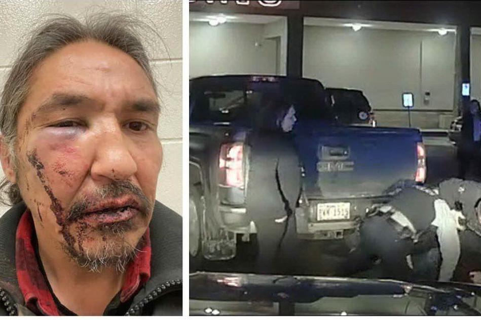 Guida con la patente scaduta, indigeno picchiato dalla Polizia