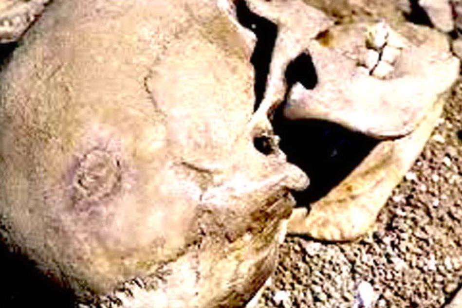 Il particolare del cranio: si vede il cerchio perfettamente cicatrizzato