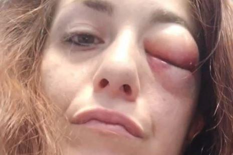 """Giuliana Danzè, la cantante di """"The Voice"""", pestata brutalmente dal compagno"""