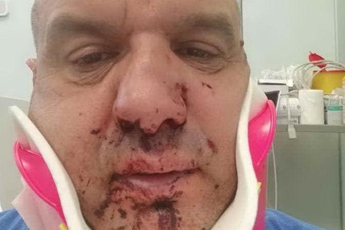 Pietro Paolo Cossu dopo il pestaggio (foto Facebook)