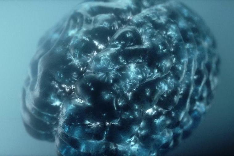 Microchip nel cervello per curare le malattie